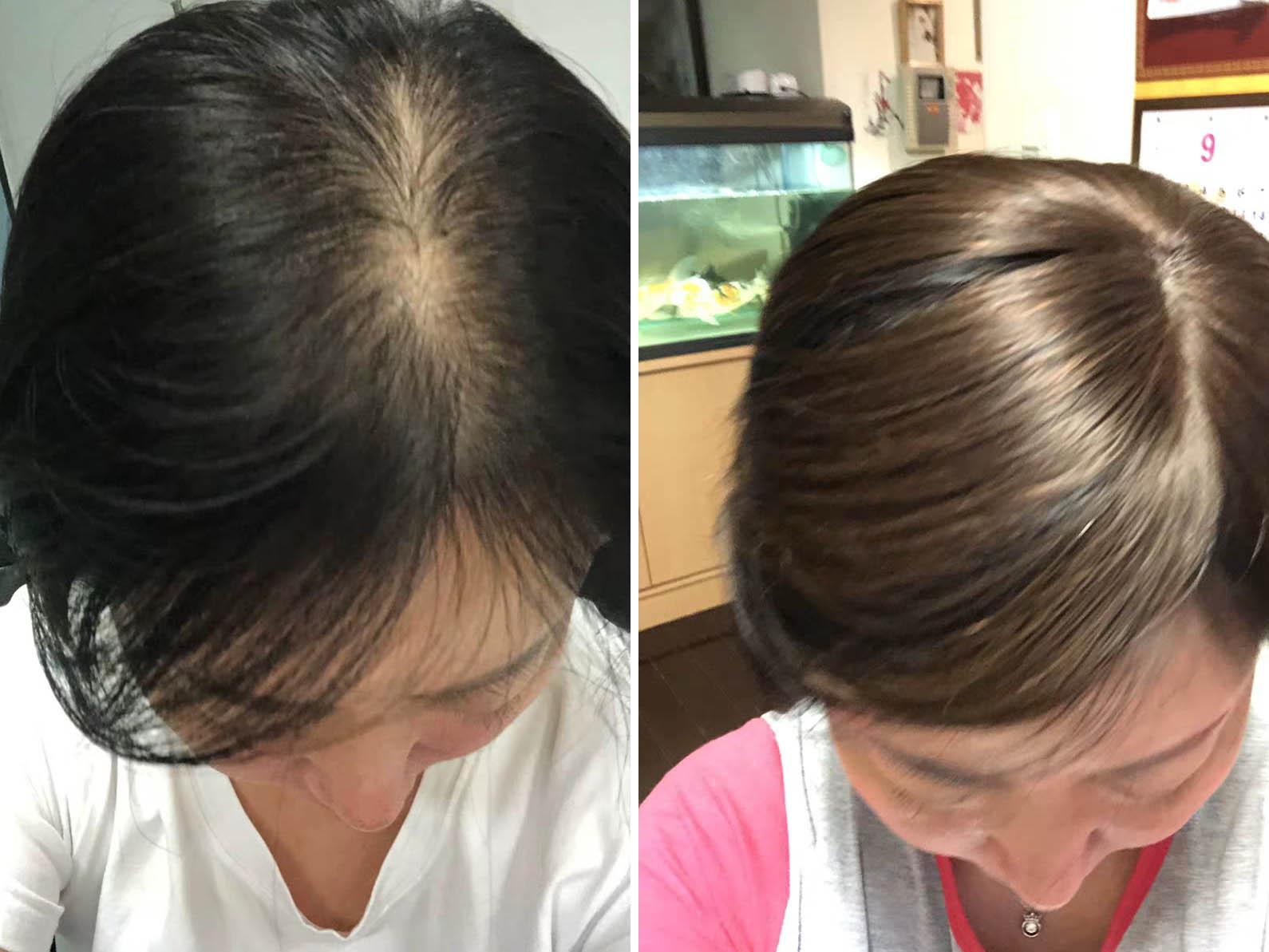 成都假发定制-遗传性脱发