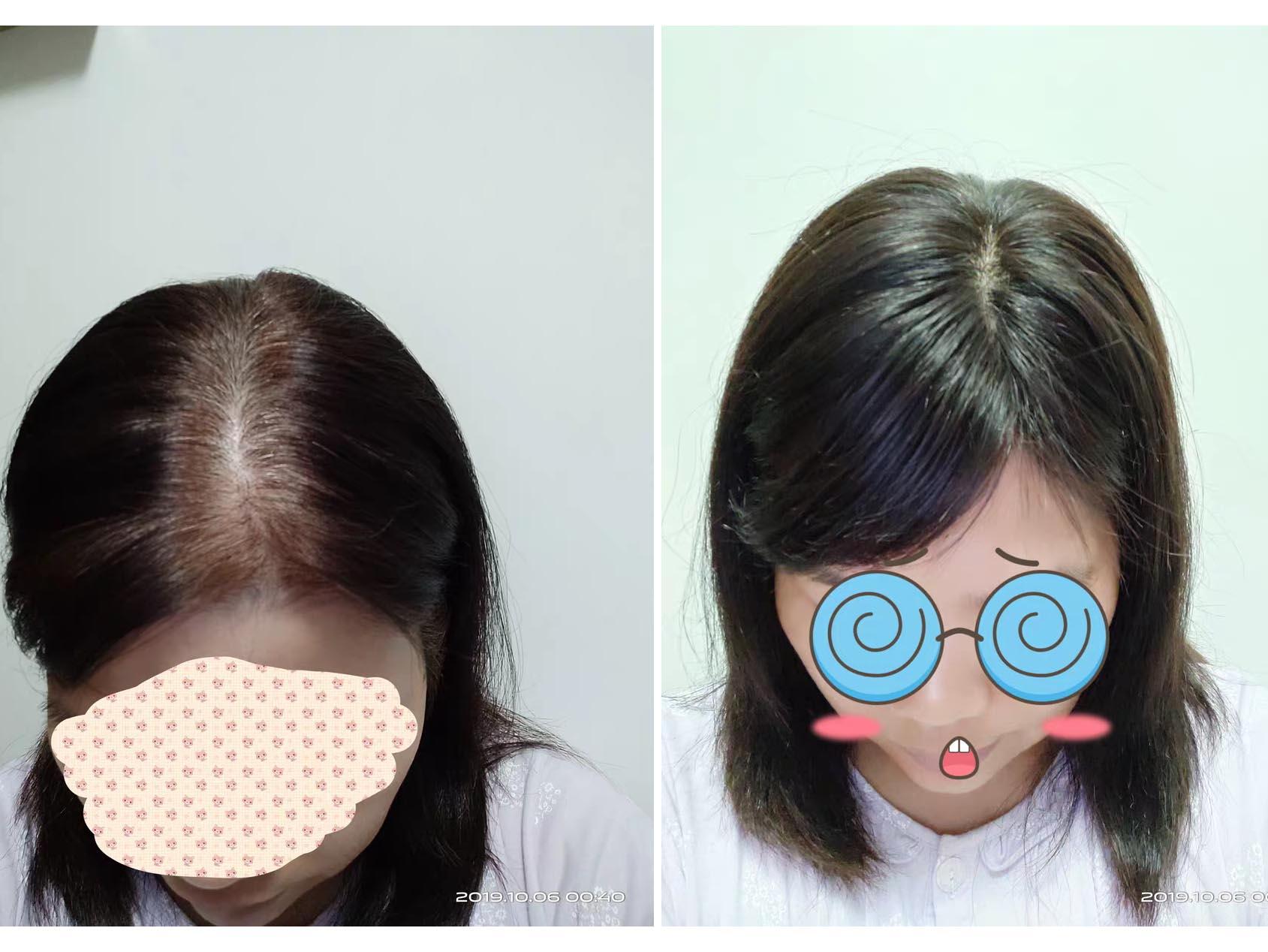 成都增发-产后脱发