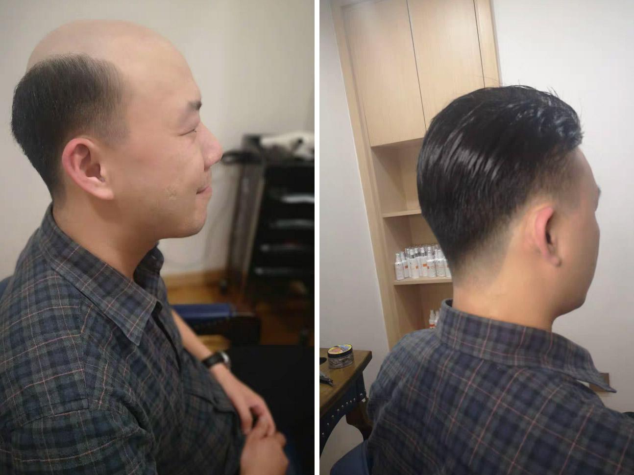 成都织发假发-秃顶