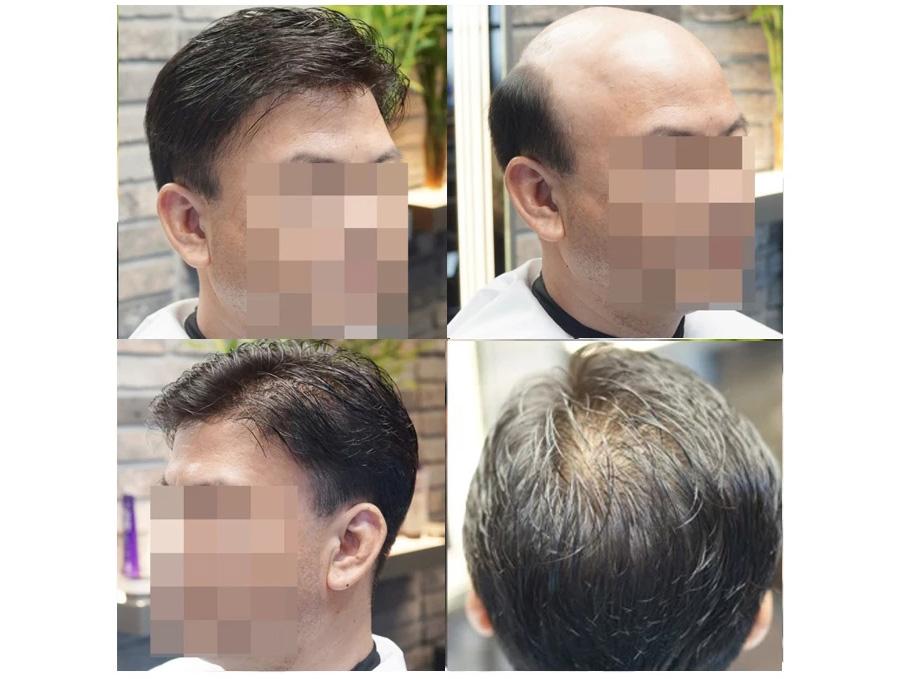 成都织发补发-秃顶