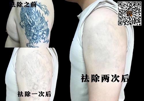 西安洗纹身哪家好