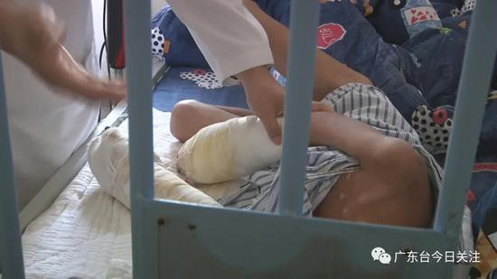 揪心!7岁男童满身烟头烫伤疤,双手面临截肢!疑凶竟是亲生父亲